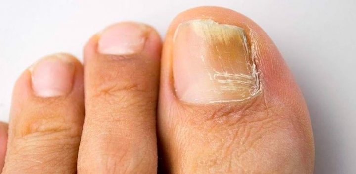 Nail Fungus Treatment – Simple Methods For Nail Fungus