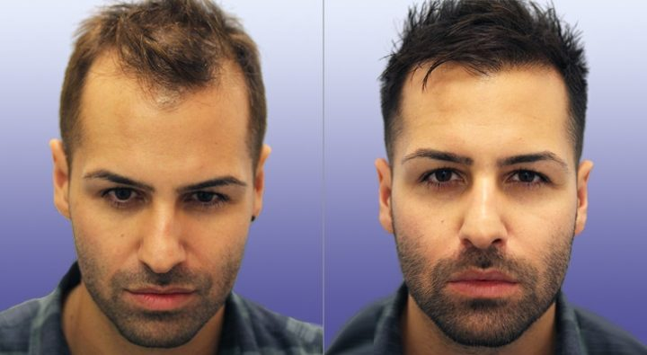 What Are the Steps of FUE hair transplant turkey?